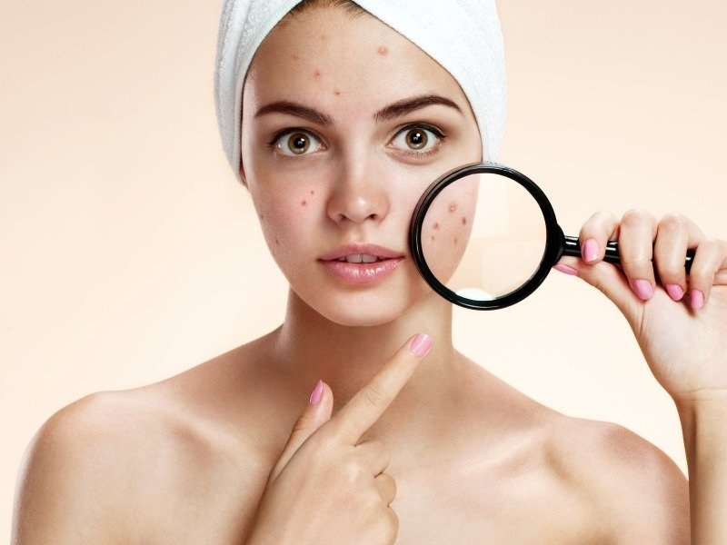 The Easiest Method To Eliminate Acne Scarring – Natural & Cosmetic Treatments