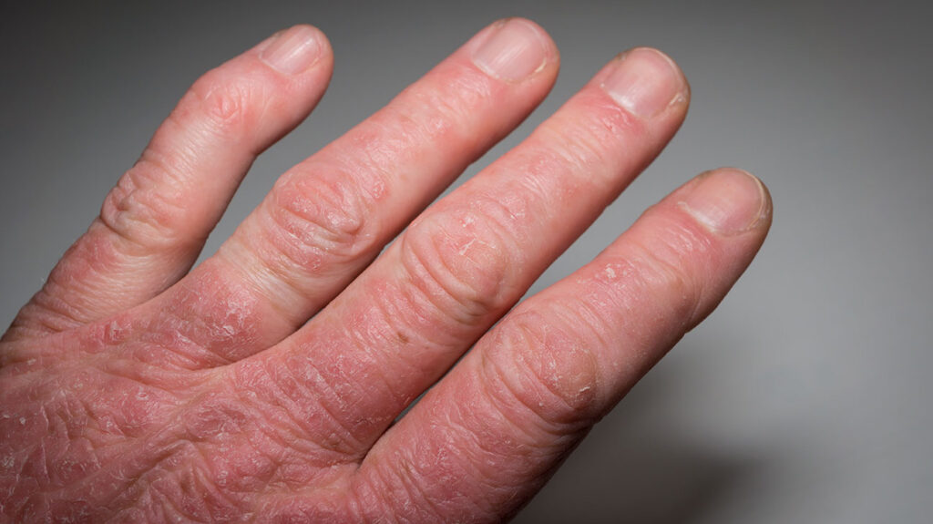 Dealing With Psoriatic Arthritis