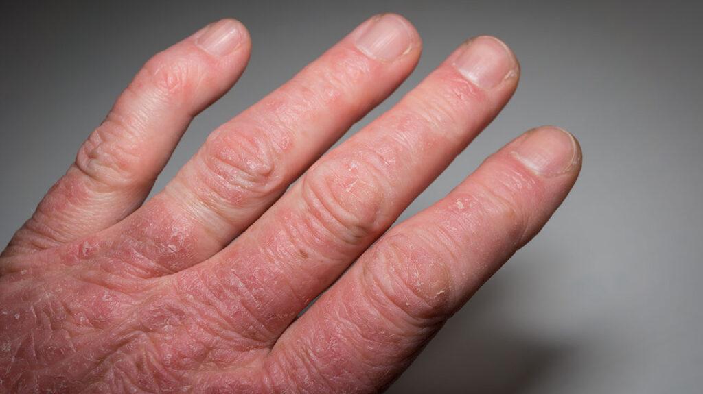 Dealing With Psoriatic Arthritis