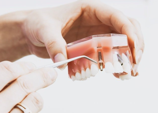 Dental Implant Procedure: What to Expect During Consultation