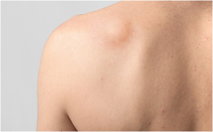 Signs and causes of lipoma