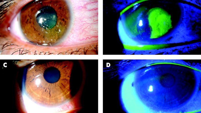 Surgical approach for recurrent corneal erosions